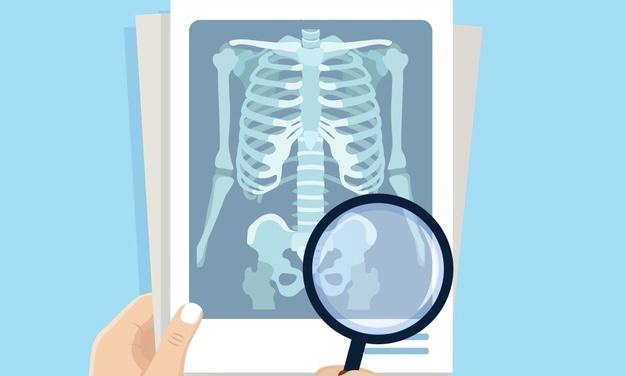Рентген, МРТ, КТ на грудном вскармливании
